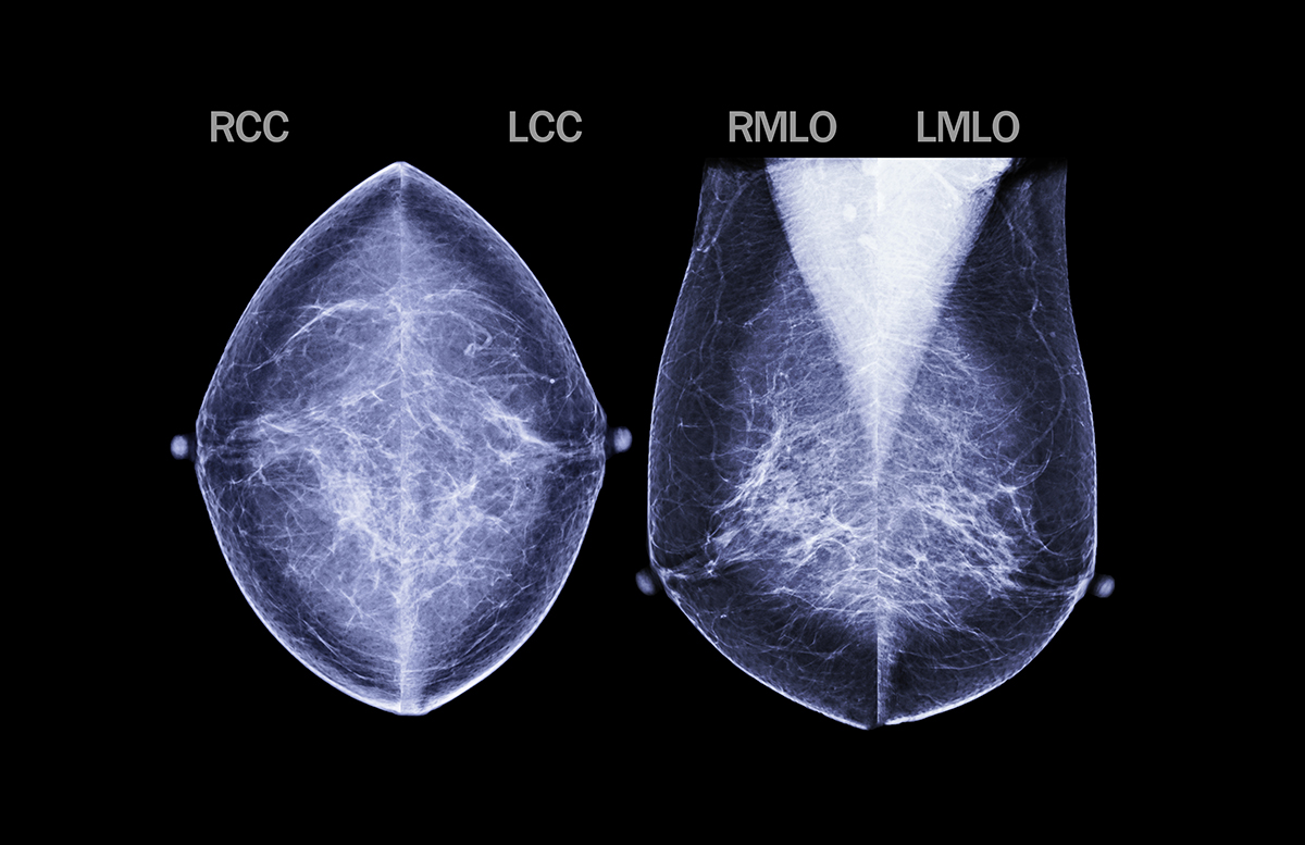 Yale Researchers Find More Women Receiving 3d Mammography Blue