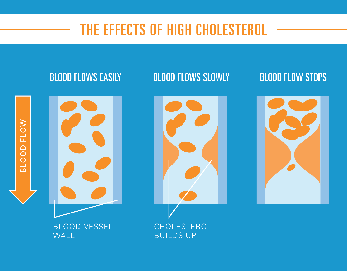 The Effects of High Cholesterol