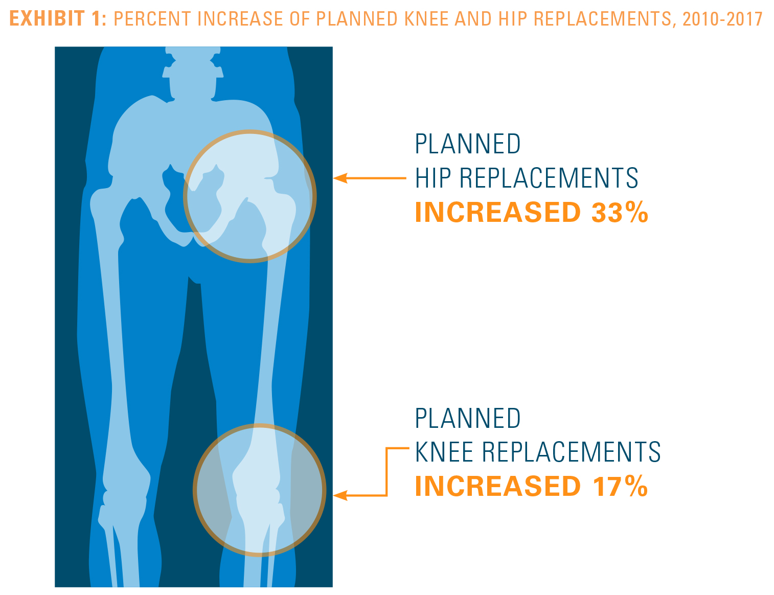 EXHIBIT 1: PERCENT INCREASE OF PLANNED KNEE AND HIP REPLACEMENTS, 2010-2017